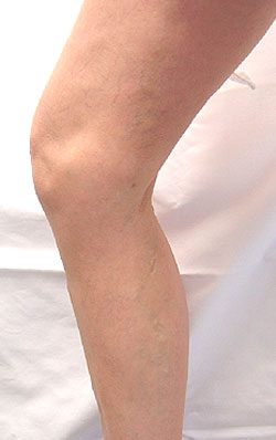 What are varicose veins? | POPSUGAR Beauty