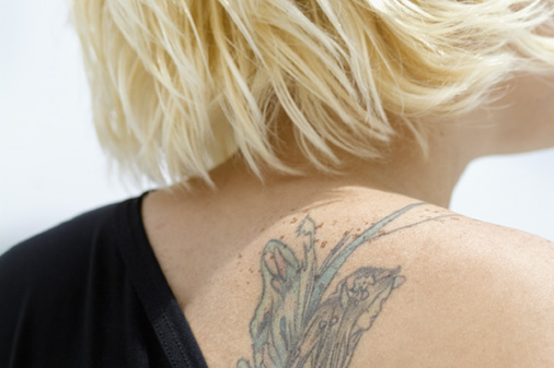 Remove Permanent Tattoos with Laser Tattoo Removal