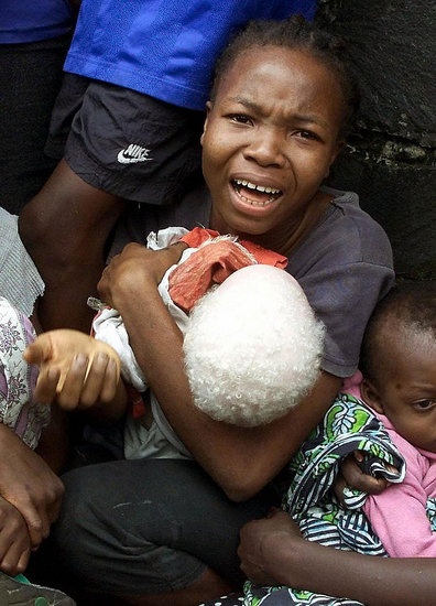 Pale and Persecuted: Albinos Hunted, Terrorized in ...