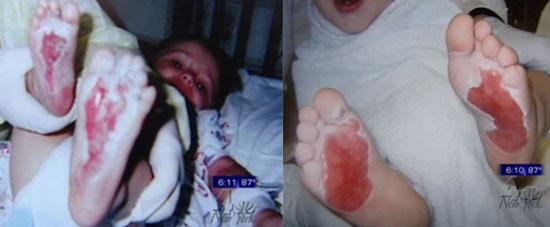 Kids Feet Pictures Burns on Kids 39 Feet