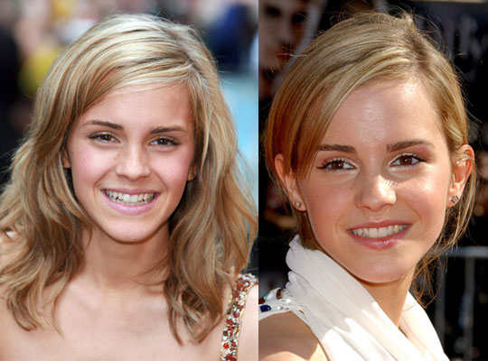 emma watson hair color. Do You Prefer Emma Watson#39;s