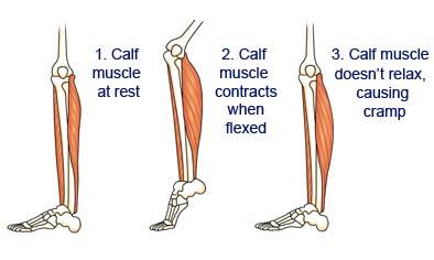 muscle cramp diagram muscle tendon diagram